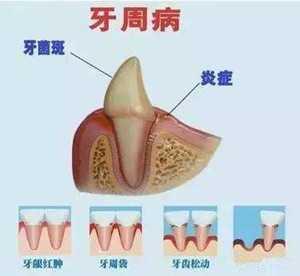 牙周病怎么治疗 严重的牙周炎怎么治